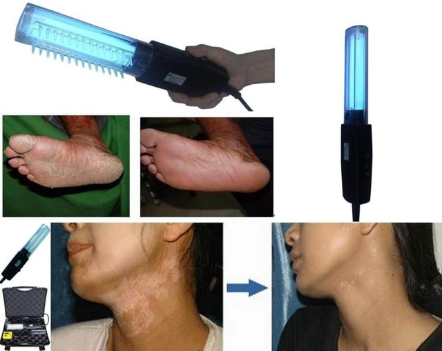 Фотохимиотерапия (ПУВА-терапия): показания и противопоказания, уход после проведения, цена, отзывы