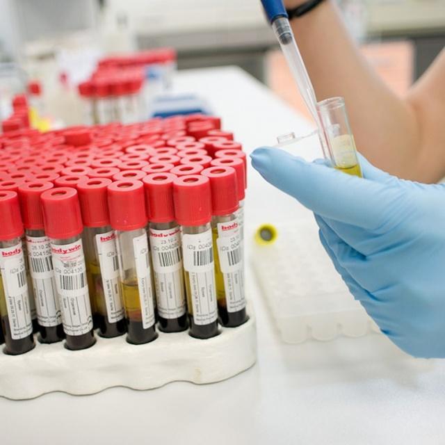 Что показывает онкомаркер he-4 у женщин: расшифровка нормы и повышения