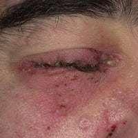 Фликтена на коже: фото, лечение, симптомы, диагностика