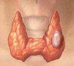 Фолликулярный рак щитовидной железы: причины и симптомы, степени, диагностика, лечение, прогноз