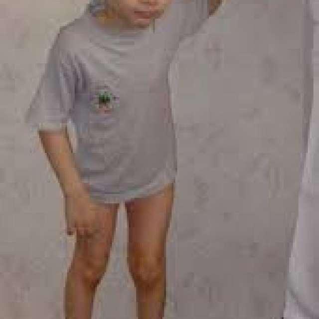Энцефалопатия у детей: перинатальная и резидуальная, симптомы, диагностика и лечение