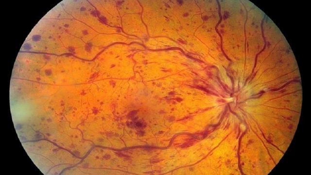 Тромбоз центральной вены сетчатки глаза: лечение народными средствами, симптомы, история болезни