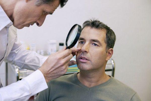 Хлоазма: симптомы, методы диагностики болезни, лечение, профилактика