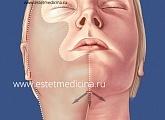 Эндоскопическая подтяжка нижней части лица: отзывы, цена, методика, фото
