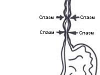 Спазм пищевода: симптомы, причины, диагностика, лечение