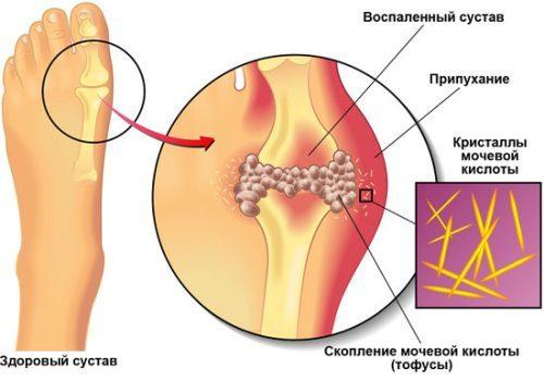 Физиотерапия при подагре: ванночки для ног, апитерапия, электрофорез, магнитотерапия, УВЧ, грязелечение