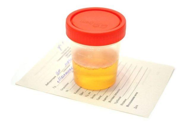 Что значит плоский, переходный, почечный эпителий в моче у ребенка, женщин и мужчин