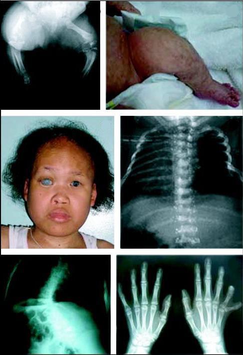 Хондродистрофия у детей: код по МКБ-10, фото, лечение, симптомы, прогноз