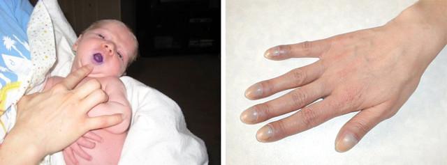 Цианоз носогубного треугольника, кожных покровов, лица, ног и рук: лечение, причины