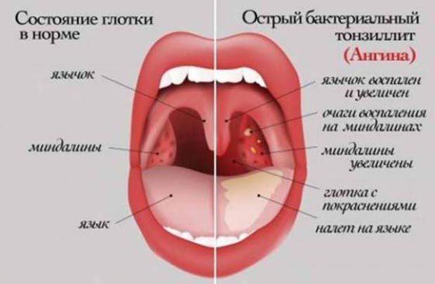 Хронический тонзиллит у взрослых и детей: симптомы, лечение, фото