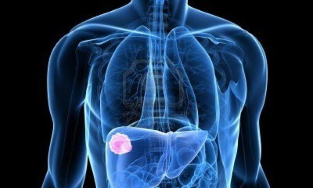 Что такое гемангиома печени: лечение, причины возникновения, фото и отзывы