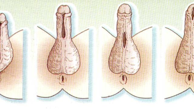 Скрытый половой член: причины, формы, симптомы, диагностика, лечение