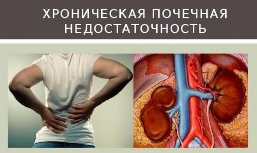 Хроническая почечная недостаточность: причины, патогенез, стадии, симптомы, лечение