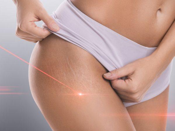 Ультразвук (ультразвуковая терапия) в косметологии и дерматологии: показания и противопоказания, цена, отзывы