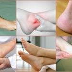Стандарты лечения хронического синовита голеностопного сустава в домашних условиях: симптомы, признаки, фото