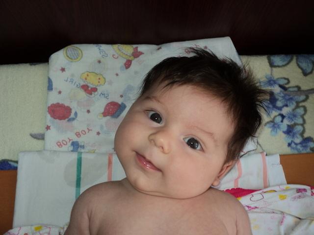 Смещение позвонков у ребенка: признаки, симптомы, лечение, операция, упражнения, фото