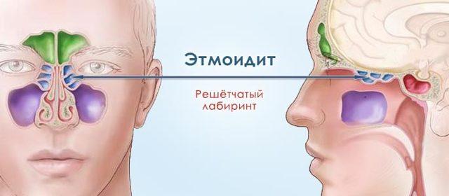 Хронический полипозный этмоидит: причины развития заболевания, симптомы, лечение