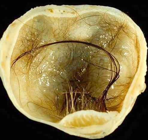 Тератома яичника, яичка, шеи и крестцово-копчиковой области у детей: фото, причины, лечение