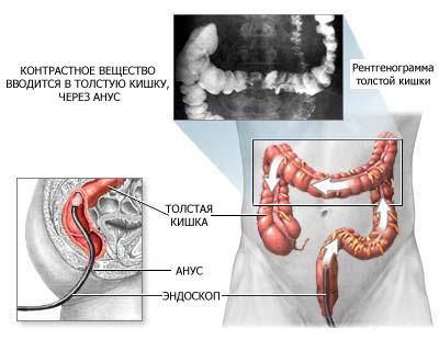 Что показывает УЗИ желудка, пищевода и кишечника: подготовка к процедуре, цена, отзывы