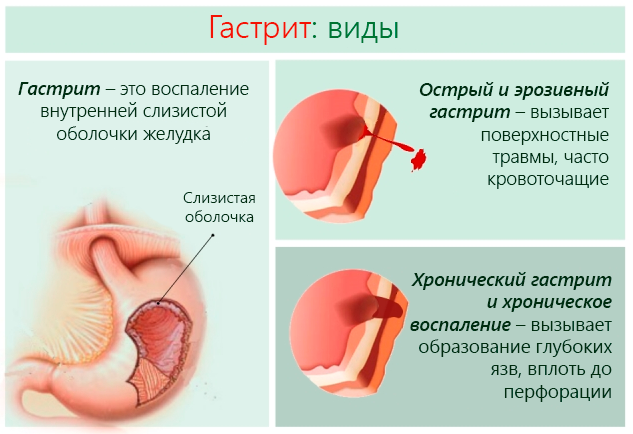 Тошнота и боль в желудке, в правом и левом подреберье, внизу живота: причины, лечение, лекарство