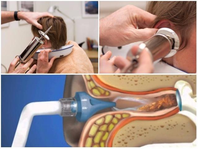 Физиотерапия при гнойном или экссудативном отите среднего уха у детей