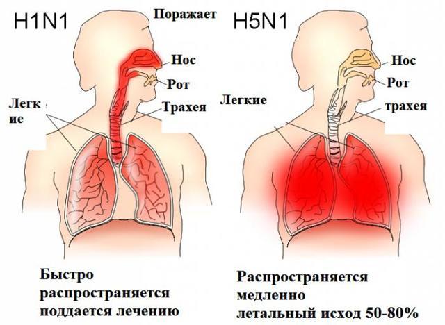Чем опасен грипп и прививка от него для детей, взрослых, беременных женщин
