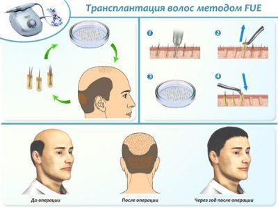 Фолликулярная пересадка волос (методом fue): цена, фото до и после, отзывы, реабилитация