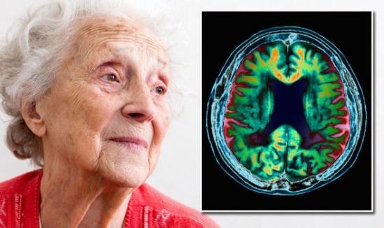 Сосудистая деменция: симптомы, диагностика и лечение, продолжительность жизни