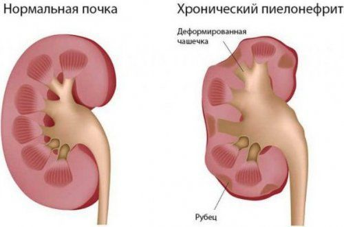 Хронический и острый гнойный паранефрит почек: код по МКБ-10, симптомы, диагностика, лечение