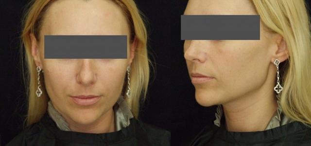 Термаж: отзывы косметологов, цены, фото до и после, аппарат, процедура