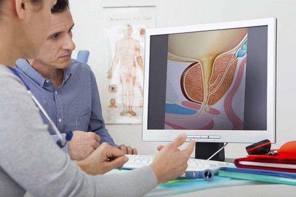 Фиброз простаты: причины, симптомы, диагностика, лечение, прогнозы