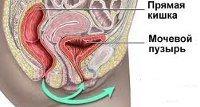 Цисталгия мочевого пузыря у женщин: код по МКБ, причины, симптомы, диагностика, лечение
