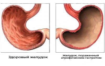 Хронический атрофический гастрит желудка: симптомы и лечение, диета, прогноз для жизни