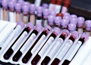 Что показывает анализ крови на онкомаркеры: цена теста, виды, расшифровка, стоит ли сдавать?