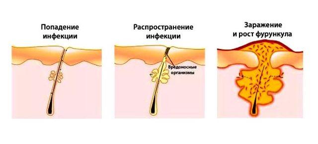 Фурункулез: причины, симптомы и лечение в домашних условиях