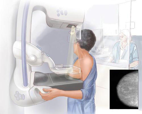 Что показывает маммография молочных желез и на какой день цикла ее делать: цена, где сделать