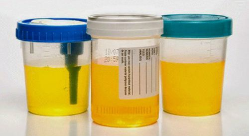 Суточный анализ мочи на белок: показания, как собирать детям и беременным, норма и расшифровка