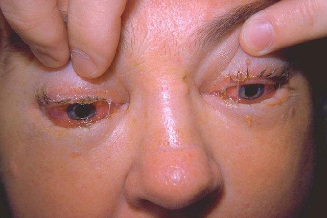 Трихинеллез: симптомы у человека, источник заражения, фото, диагностика, лечение, профилактика