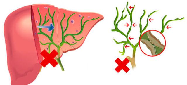 Холедохолитиаз: МКБ-10, причины, симптомы, осложнения, диагностика, лечение, прогноз