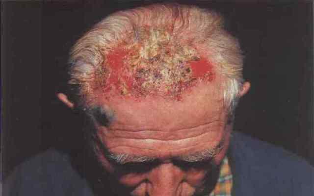 Эпидемическая пузырчатка: причины возникновения, симптомы, диагностика, лечение