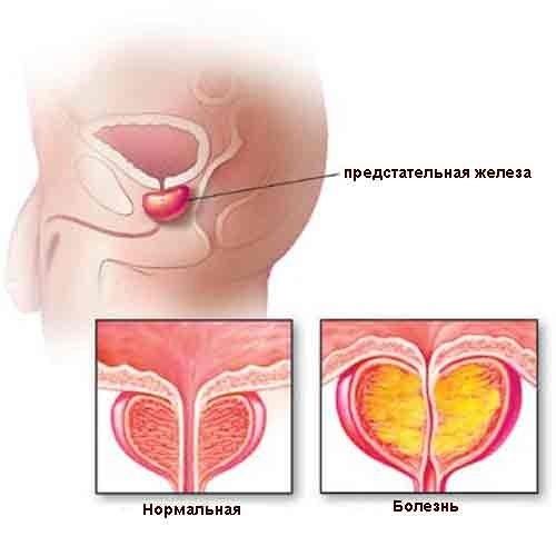 Хронический абактериальный простатит: причины, симптомы, диагностика, лечение