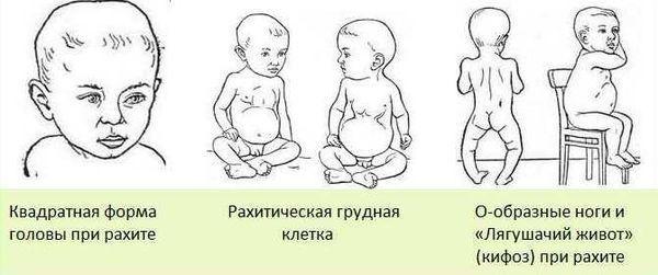 Степени рахита: 1, 2, 3, 4 стадии, начальные симптомы у детей