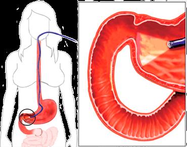 Смешанный гастрит: причины, виды, симптомы, диагностика, лечение