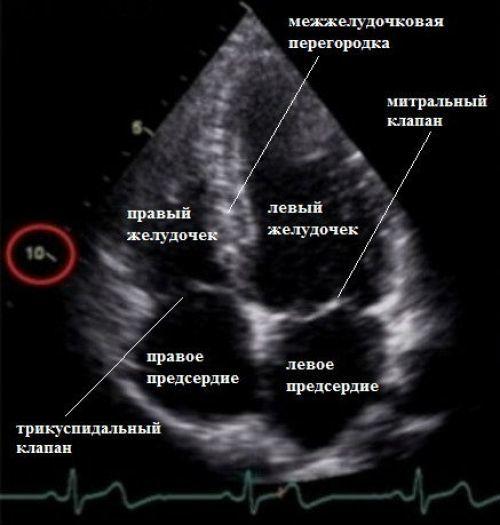УЗИ сердца ребенка и взрослого: расшифровка результатов, цена, показатели нормы