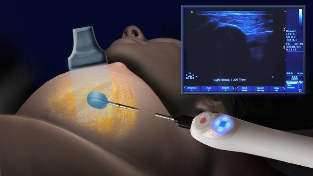 Трепанобиопсия костного мозга и молочной железы: показания, отзывы, цены, видео