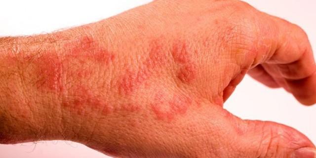Фолликулярный дерматит: лечение в домашних условиях, симптомы, мази