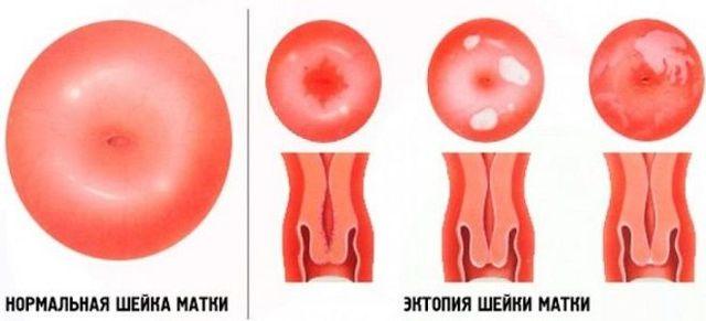 Умеренный хронический цервицит: причины, симптомы, диагностика, лечение