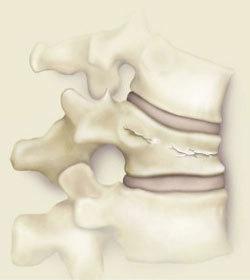 Субхондральный склероз замыкательных пластинок позвоночника шейного, грудного, поясничного отдела: симптомы, лечение, виды, степени