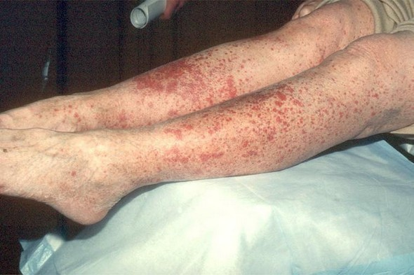 Что за болезнь аллергический васкулит: симптомы, лечение, причины, фото