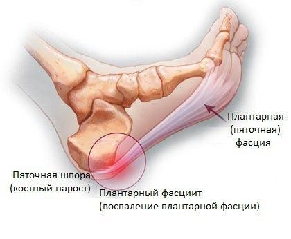 Шишки на пятке сзади, сбоку, снизу под кожей: причины, как лечить, операция